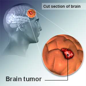 Brain cancer tumor