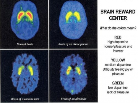 Cocaine addiction, alcoholism, obesity, normal brain scans