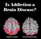 Is addiction a brain disease?