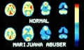 Marijuana, weed brain scan