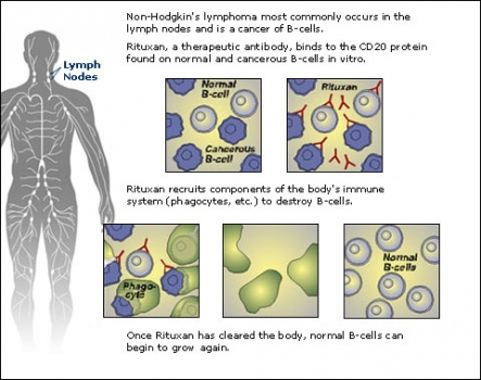 Chemo for Non-Hodgkin's lymphoma