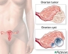 Ovarian cancer tumor and cyst