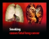 Smoking and cancer